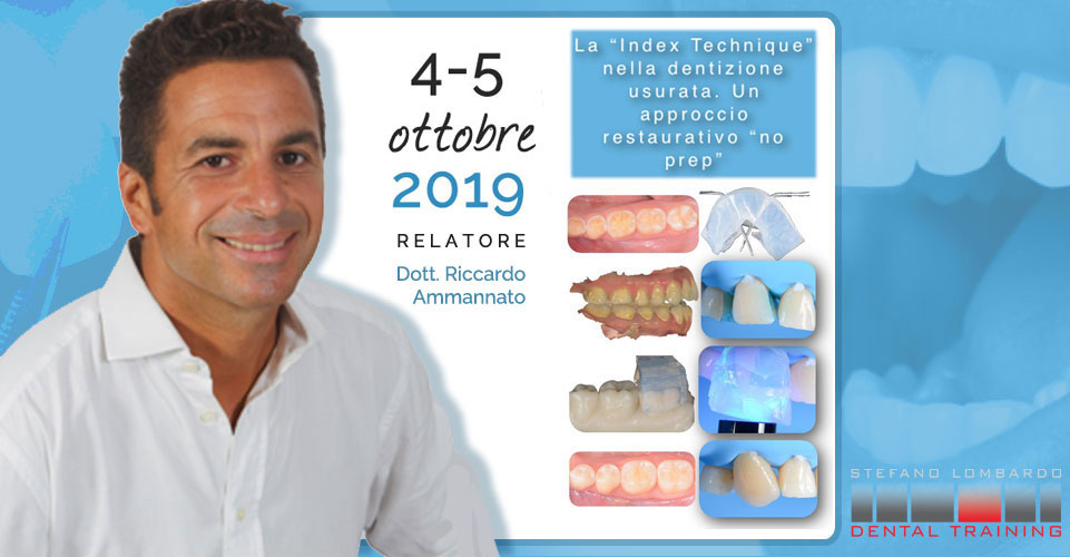 Index Technique nella Dentizione usurata